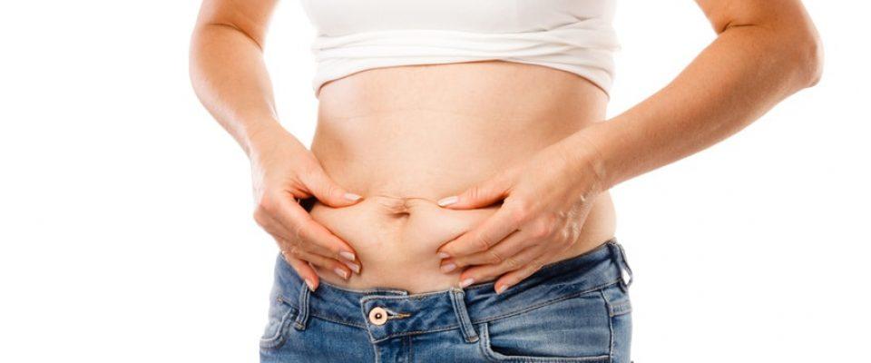 Nach Gewichtsreduktion kann der Facharzt durch Bauchdeckenstraffung eine bestehende Fettschürze entfernen.